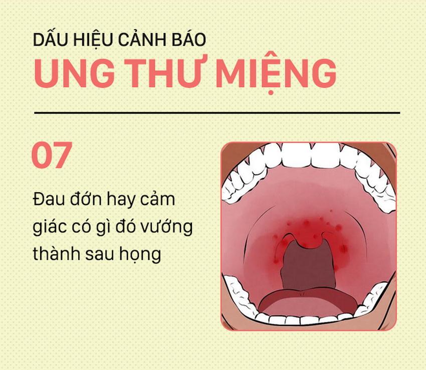 Những dấu hiệu cảnh báo ung thư miệng