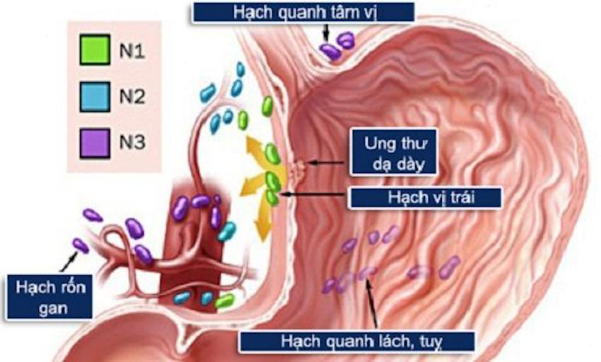 7 bí quyết bảo vệ dạ dày không bị loét