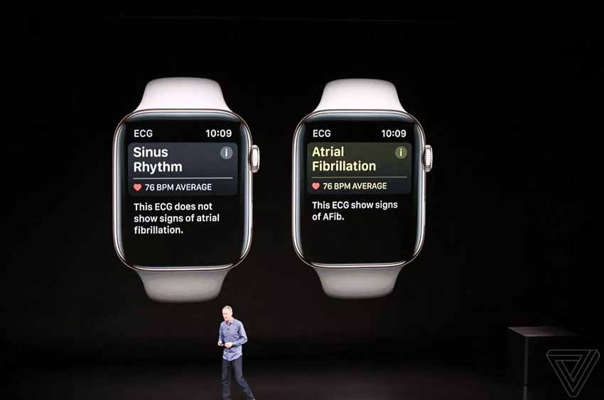 ra-mat-Apple-Watch-the-he-thu-4-2