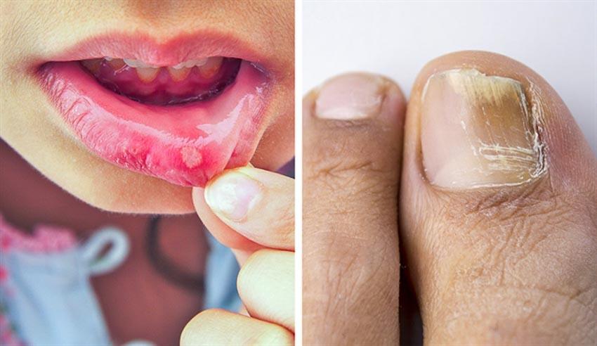 10 tác dụng phụ của thuốc kháng sinh bác sĩ không bao giờ nói ra 1