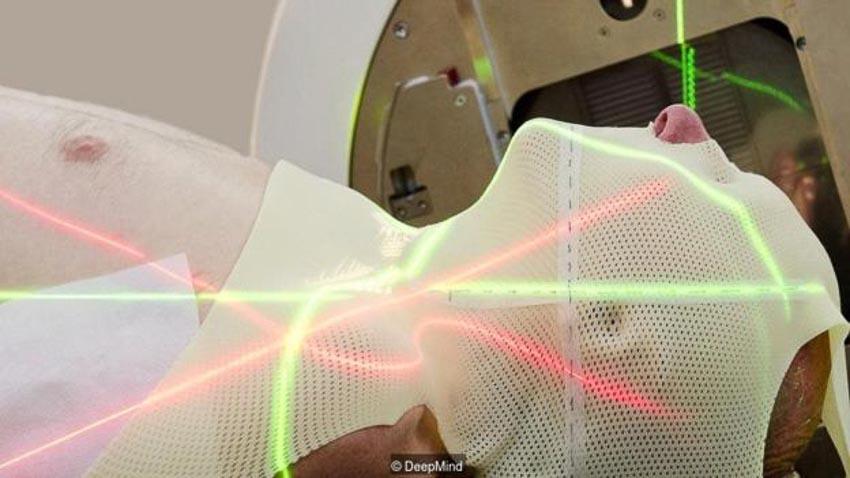 Chương trình DeepMind của Google giúp các bác sĩ lập phác đồ điều trị ung thư bằng cách dùng máy tầm soát, xác định các vùng mô lành ở bệnh nhân