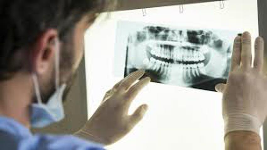 Vệ sinh răng miệng đóng vai trò quan trọng đối với trái tim 2