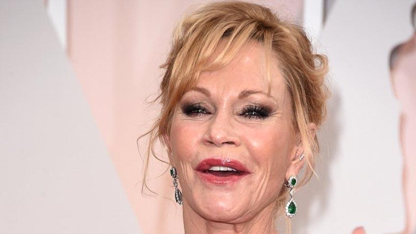 Những ngôi sao điện ảnh tự hủy hoại sự nghiệp vì phẫu thuật thẩm mỹ 8