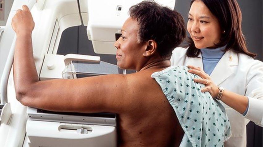 Chụp nhũ ảnh tầm soát ung thư vú