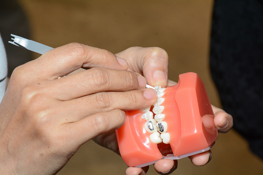 Niềng răng 3M Clarity Ultra, ứng dụng công nghệ vì nụ cười đẹp tự nhiên - 10