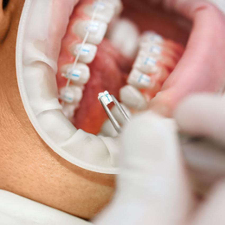 Niềng răng 3M Clarity Ultra, ứng dụng công nghệ vì nụ cười đẹp tự nhiên - 06