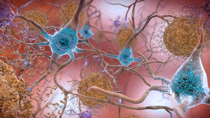 Lần theo nguồn gốc gây bệnh Alzheimer -1