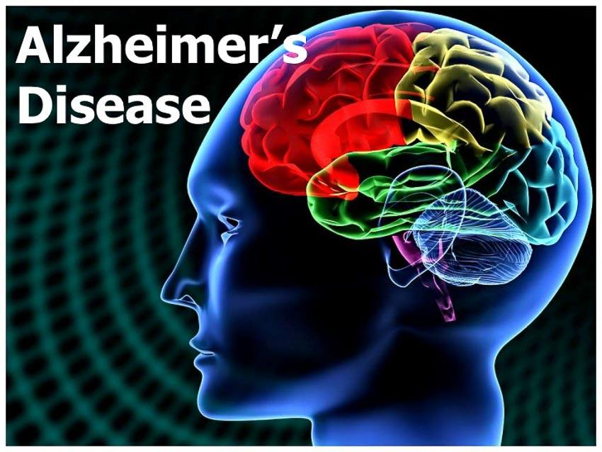 Lần theo nguồn gốc gây bệnh Alzheimer -4