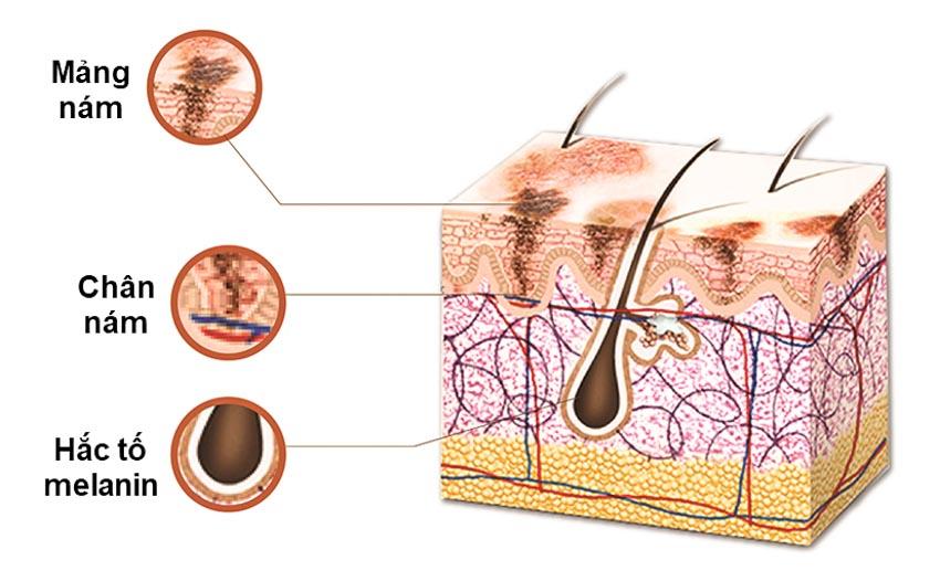 Nguyên nhân gây nám da và cách chăm sóc da nám - 2
