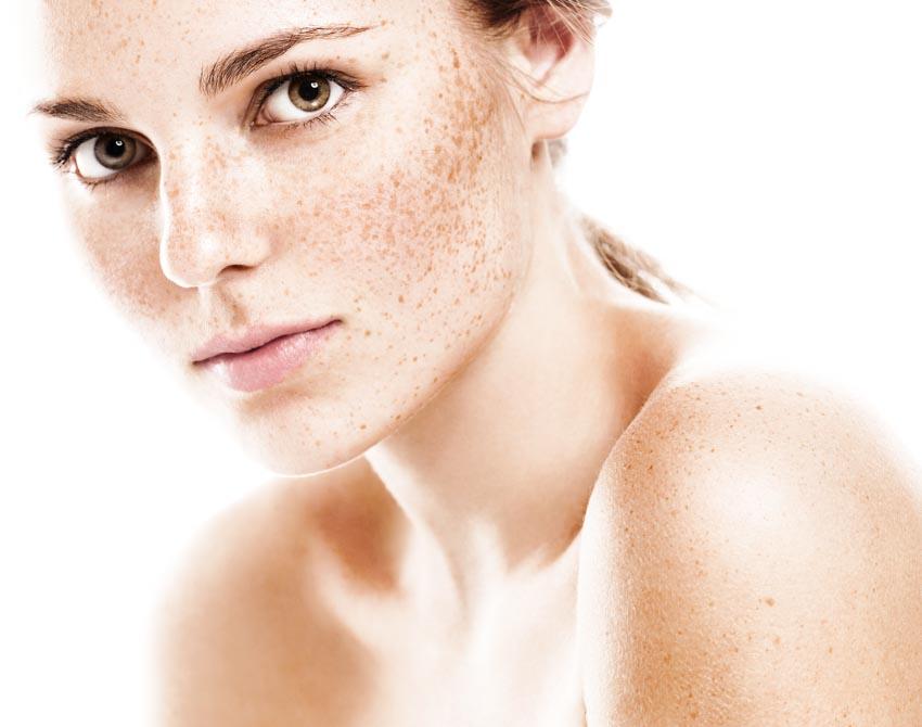 Nguyên nhân gây nám da và cách chăm sóc da nám - 3