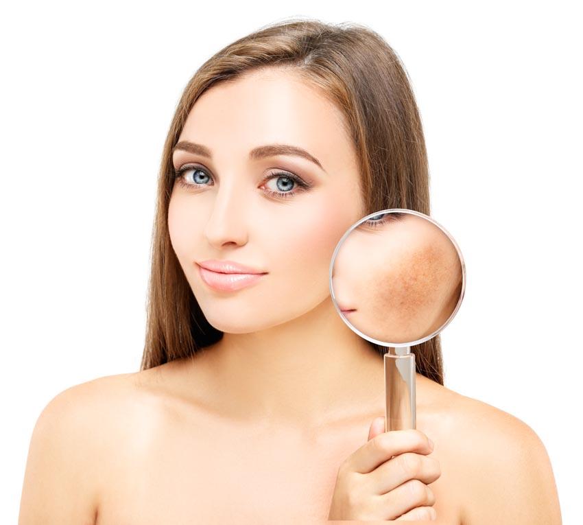 Nguyên nhân gây nám da và cách chăm sóc da nám - 4