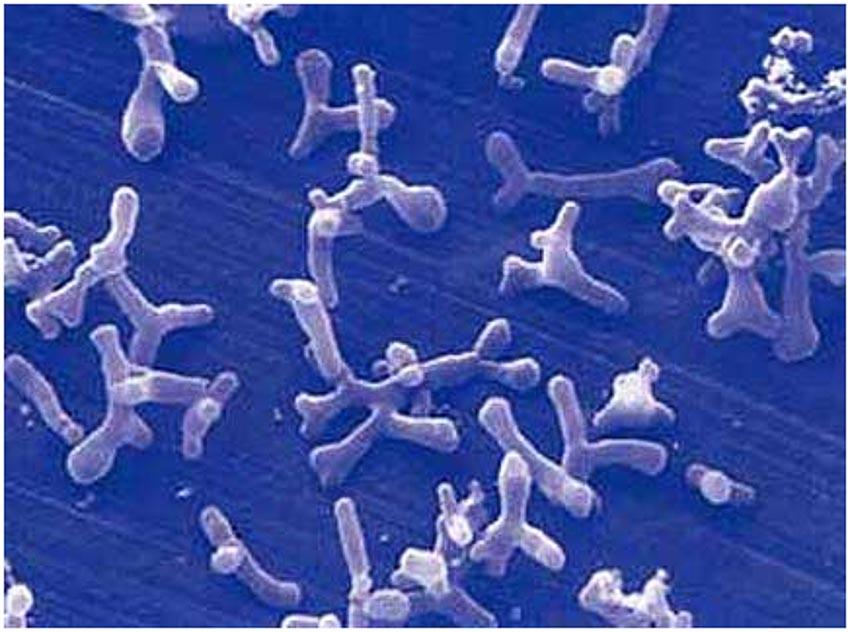 Hệ vi khuẩn ruột hứa hẹn là cứu tinh cho trẻ suy dinh dưỡng - 10