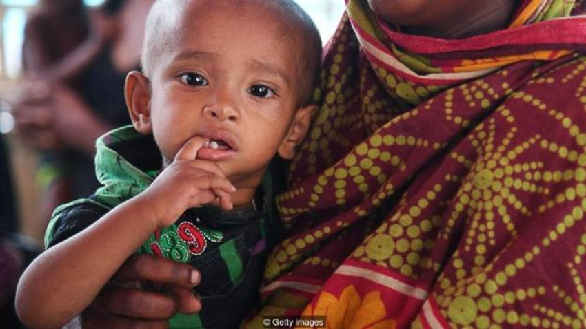 Hệ vi khuẩn ruột hứa hẹn là cứu tinh cho trẻ suy dinh dưỡng - 3