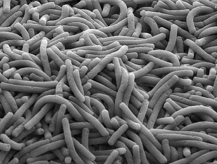 Hệ vi khuẩn ruột hứa hẹn là cứu tinh cho trẻ suy dinh dưỡng - 9