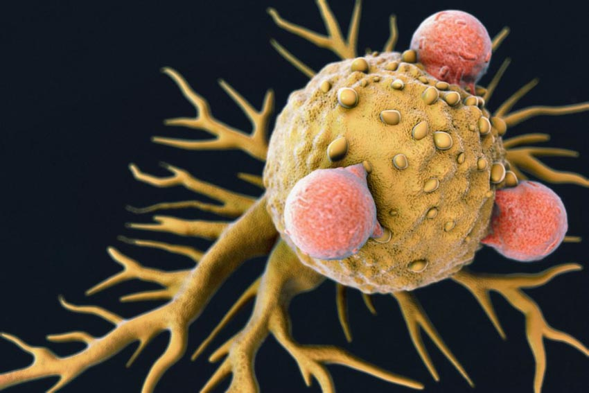Liệu pháp miễn dịch chống ung thư đoạt Giải Nobel Y học 2018 - 6