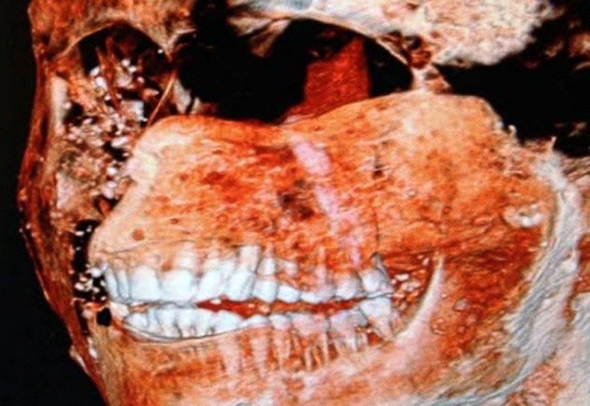 Những phát hiện mới nhất về thành phố Pompeii bị núi lửa chôn vùi - 6