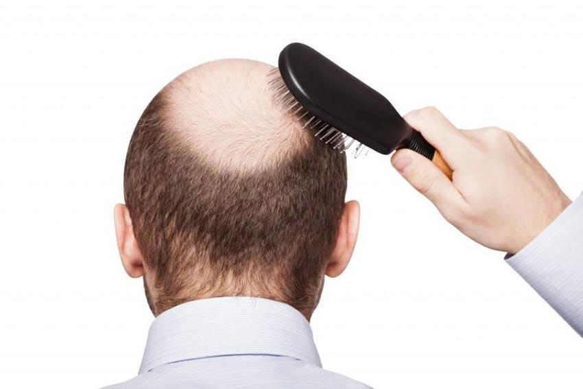 Nguyên nhân và cách điều trị chứng rụng tóc - 3