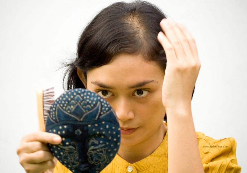 Nguyên nhân và cách điều trị chứng rụng tóc - 2