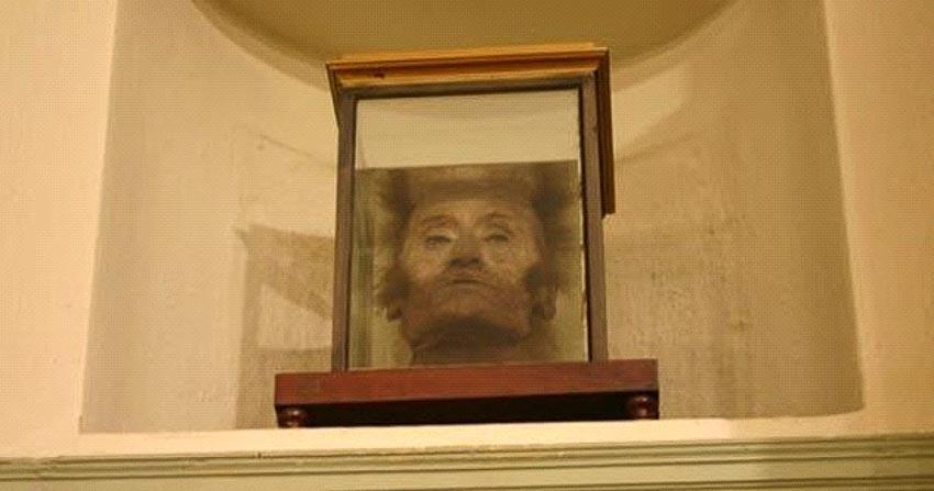 Những bộ phận cơ thể con người được trưng bày trong các bảo tàng -5