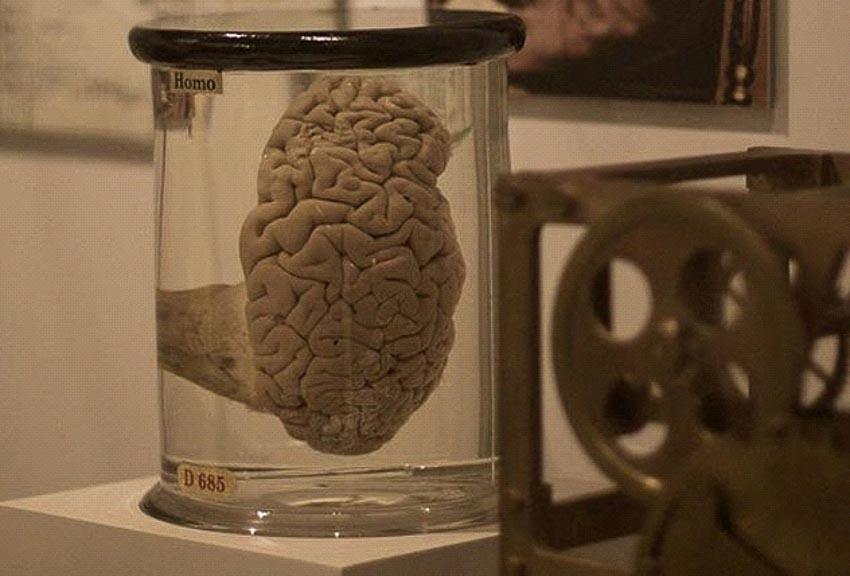 Những bộ phận cơ thể con người được trưng bày trong các bảo tàng -6