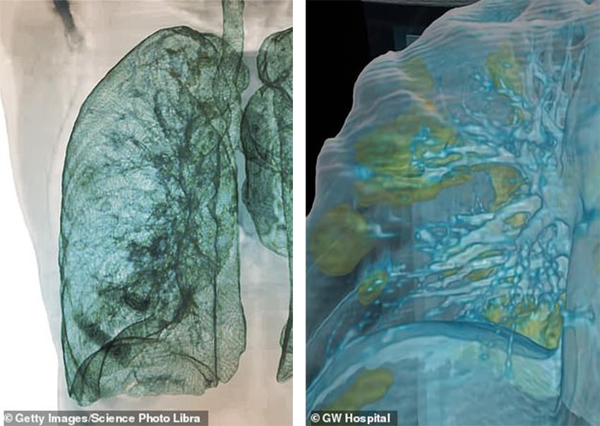 Virus sẽ thâm nhập lá phổi người nhiễm COVID-19 như thế nào? - 2