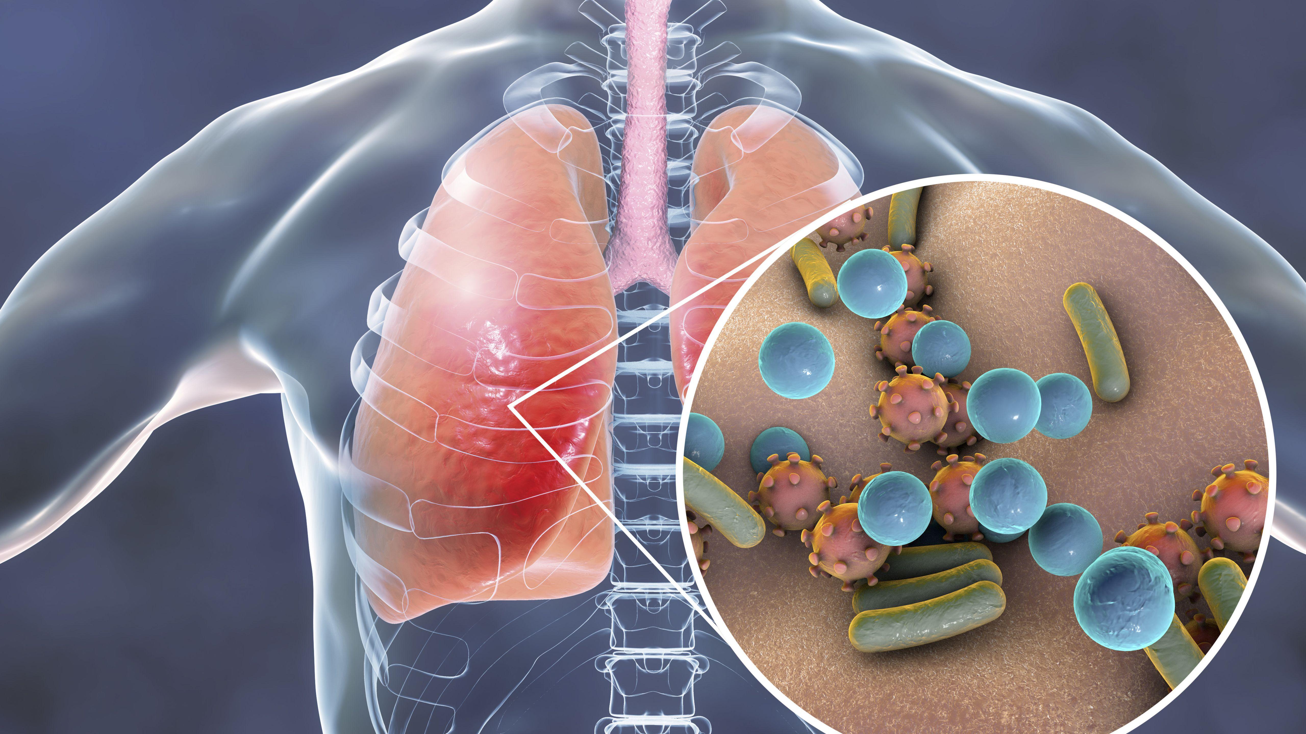 Nguyên nhân và triệu chứng của 6 bệnh viêm phổi thường gặp - 3