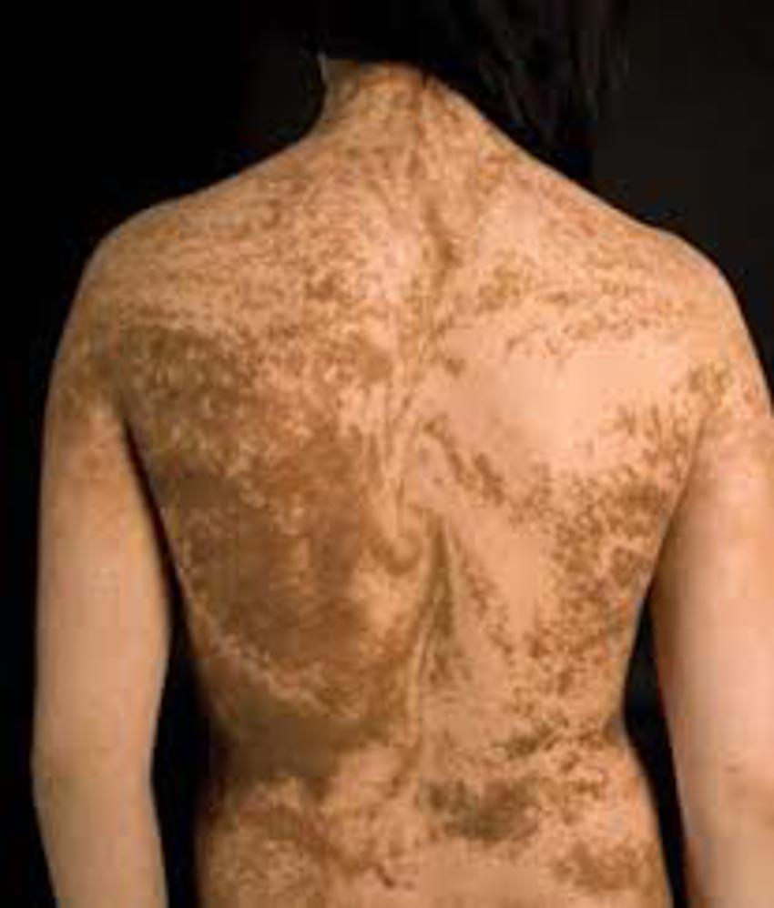 10 đặc điểm cơ thể hiếm thấy nơi con người -10