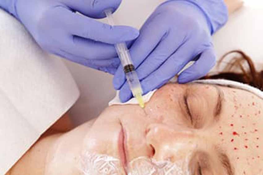 Những sự cố trị liệu spa trở thành ác mộng -2