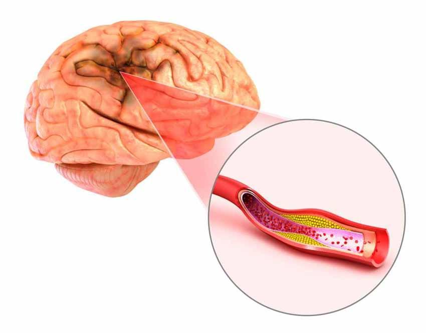 Đột quỵ não và đây là công cụ 'vàng' để tầm soát hiệu quả -2