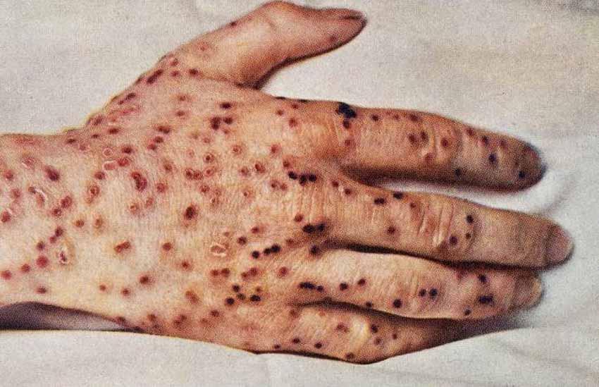 Lịch sử khám phá thuốc chủng ngừa - 3