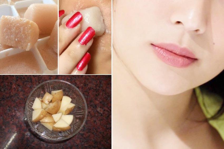 Nước khoai tây giúp loại bỏ những khiếm khuyết trên da