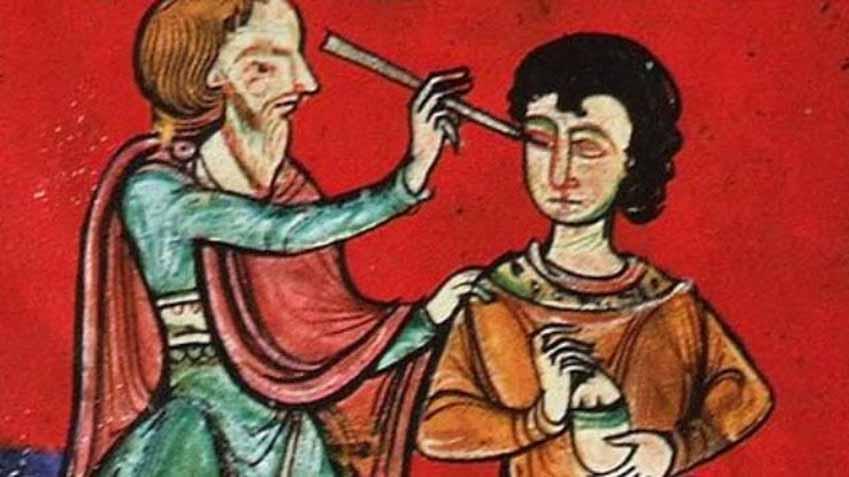 Những biện pháp y học kỳ lạ thời Trung cổ - 9