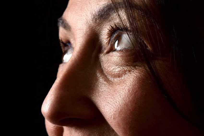 Những nguyên nhân và cách chữa các quầng thâm dưới mắt - 10