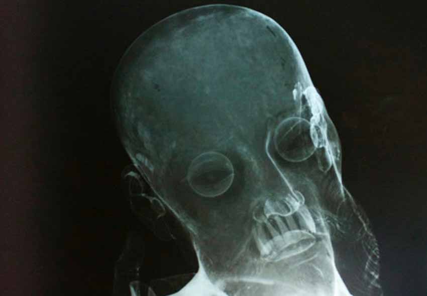 Những vật lạ tìm thấy trong các pho tượng - 3